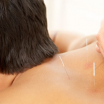 [San Francisco] 58% Off! One or Two Acupuncture Sessions by Licensed Acupuncturist